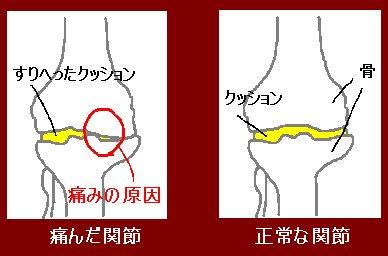 根本から治療しないと改善しない膝痛