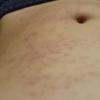 【毒】危険な毛虫の被害者達【チャドクガ】痛い痒い蕁麻疹の対処法